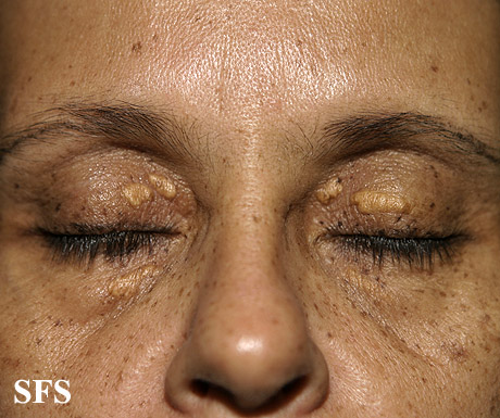 xanthelasma palpebrarum(xanthelasma_palpebrarum14.jpg)