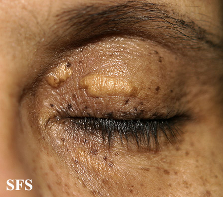 xanthelasma palpebrarum(xanthelasma_palpebrarum15.jpg)