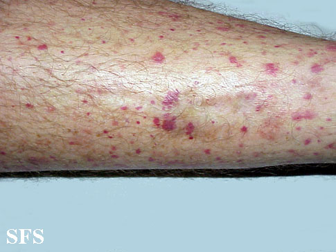 allergic vasculitis(allergic_vasculitis2.jpg)