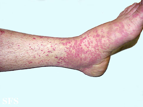 allergic vasculitis(allergic_vasculitis4.jpg)