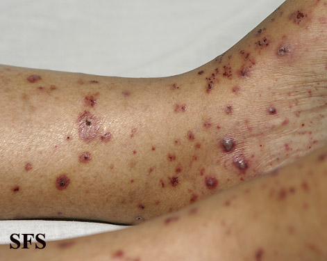 allergic vasculitis(allergic_vasculitis10.jpg)
