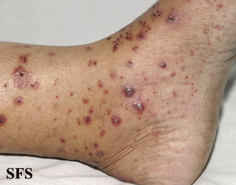 allergic vasculitis(allergic_vasculitis11.jpg)