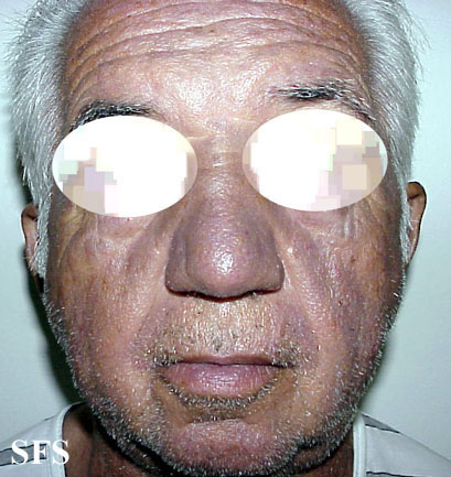 hyperpigmentation due to amiodarone