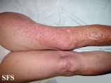 leiomyoma-multiple cutaneous leiomyomas