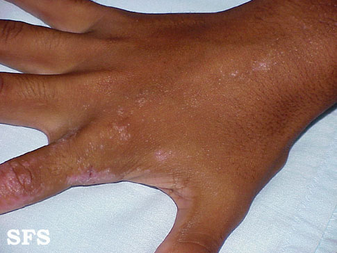 inflammatory linear verrucous epidermal naevi(inflammatory_linear_verrucous_epidermal_naevi4.jpg)