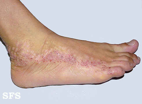 inflammatory linear verrucous epidermal naevi(inflammatory_linear_verrucous_epidermal_naevi16.jpg)