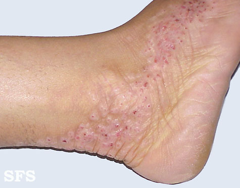 inflammatory linear verrucous epidermal naevi(inflammatory_linear_verrucous_epidermal_naevi17.jpg)