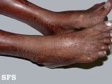 ichthyosis-acquired ichthyosis-clofazimine