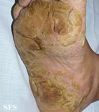 tylotic dermatitis