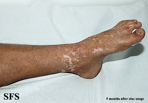 zinc deficiency(zinc_deficiency31.jpg)