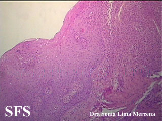 langerhans cell histiocytosis