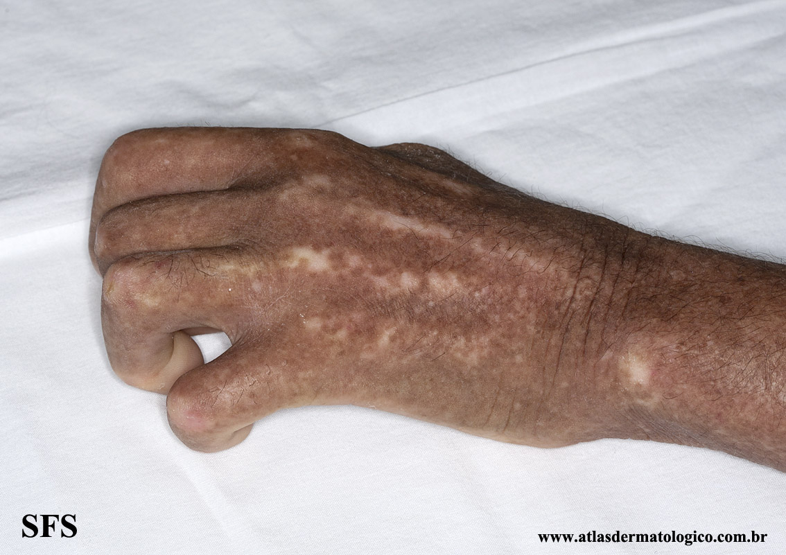 systemic_sclerosis