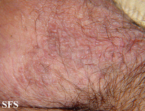 darier-like epidermal naevus