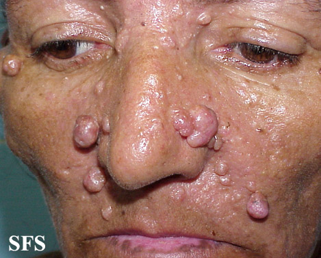 nevoid basal cell carcinoma syndrome(nevoid_basal_cell_carcinoma_syndrome10.jpg)