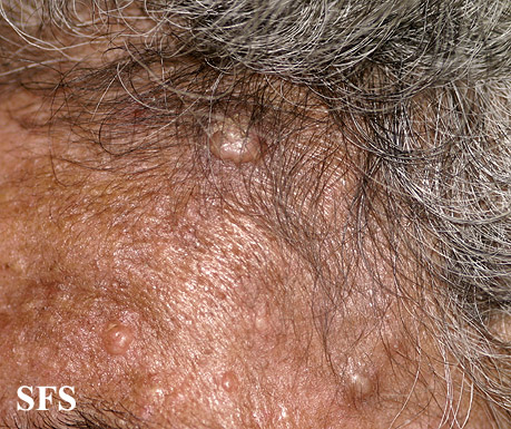 nevoid basal cell carcinoma syndrome(nevoid_basal_cell_carcinoma_syndrome16.jpg)