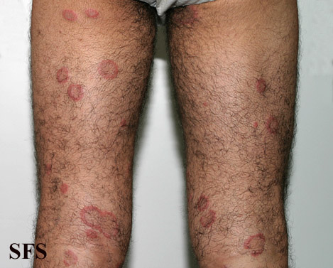 eosinophilic annular erythema