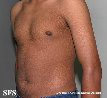 papilomatosis confluentes and reticulate(papilomatosis_confluentes_and_reticulate40.jpg)