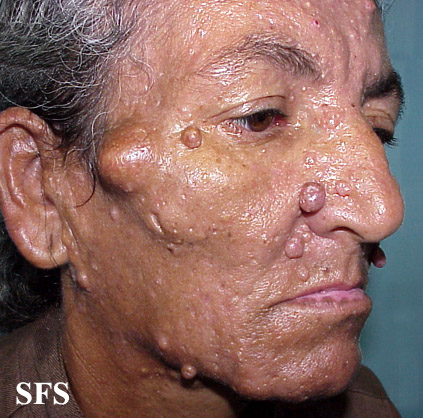 nevoid basal cell carcinoma syndrome(nevoid_basal_cell_carcinoma_syndrome9.jpg)
