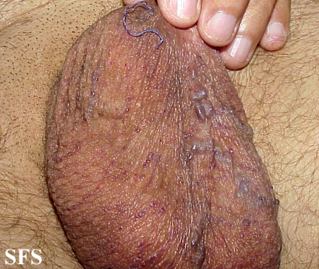 angiokeratoma of the scrotum