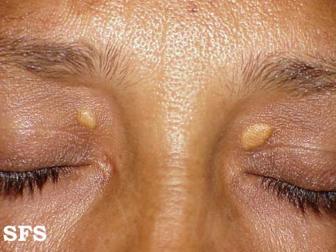 xanthelasma palpebrarum(xanthelasma_palpebrarum1.jpg)