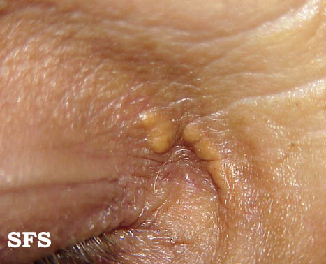 xanthelasma palpebrarum(xanthelasma_palpebrarum3.jpg)