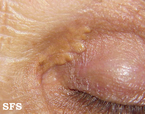 xanthelasma palpebrarum(xanthelasma_palpebrarum4.jpg)