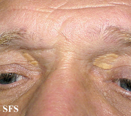 xanthelasma palpebrarum(xanthelasma_palpebrarum5.jpg)