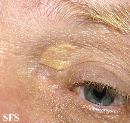 xanthelasma palpebrarum(xanthelasma_palpebrarum7.jpg)