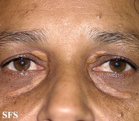 xanthelasma palpebrarum(xanthelasma_palpebrarum8.jpg)