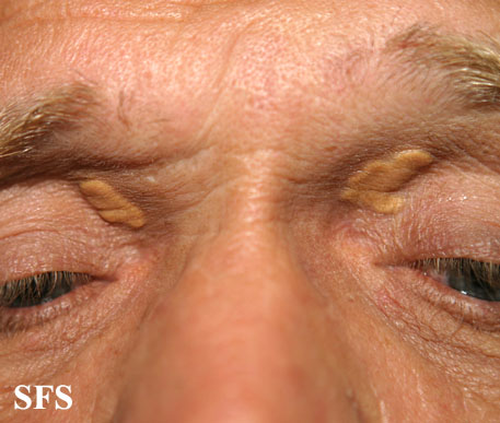 xanthelasma palpebrarum(xanthelasma_palpebrarum9.jpg)