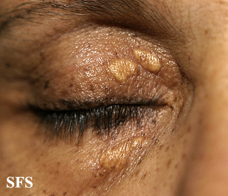 xanthelasma palpebrarum(xanthelasma_palpebrarum16.jpg)
