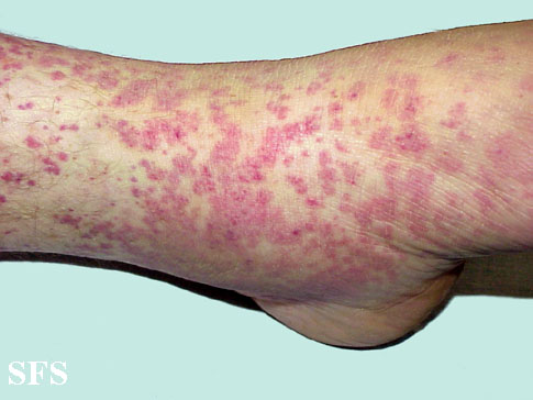 allergic vasculitis(allergic_vasculitis5.jpg)