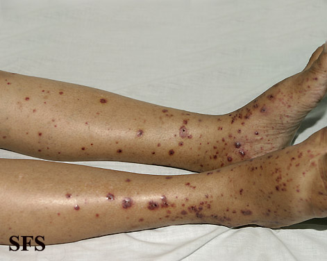 allergic vasculitis(allergic_vasculitis8.jpg)