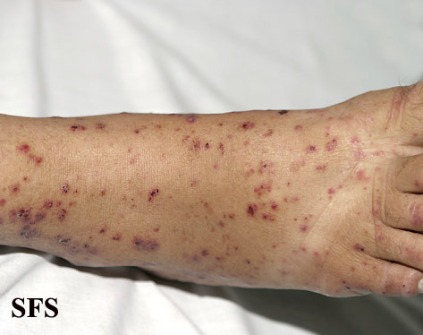 allergic vasculitis(allergic_vasculitis14.jpg)