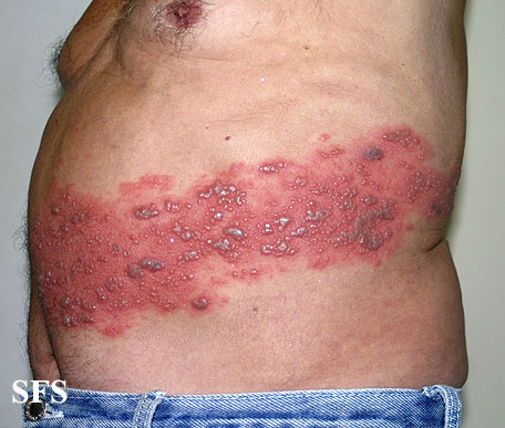 herpes zoster(herpes_zoster26.jpg)