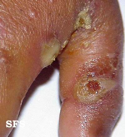scabies-secondary infection