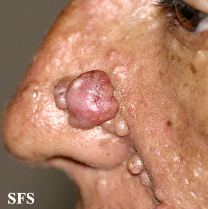 nevoid basal cell carcinoma syndrome(nevoid_basal_cell_carcinoma_syndrome15.jpg)