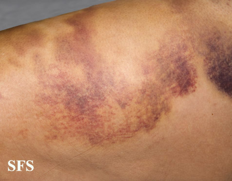 painful bruising syndrome(painful_bruising_syndrome8.jpg)