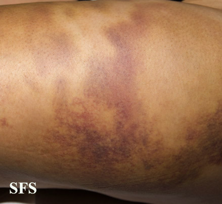 painful bruising syndrome(painful_bruising_syndrome9.jpg)