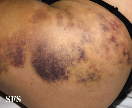 painful bruising syndrome(painful_bruising_syndrome11.jpg)