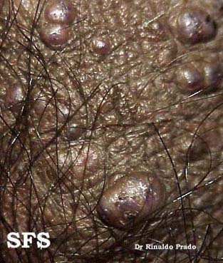 angiokeratoma of the scrotum(angiokeratoma_of_the_scrotum4.jpg)