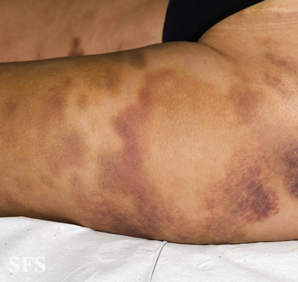 painful bruising syndrome(painful_bruising_syndrome5.jpg)