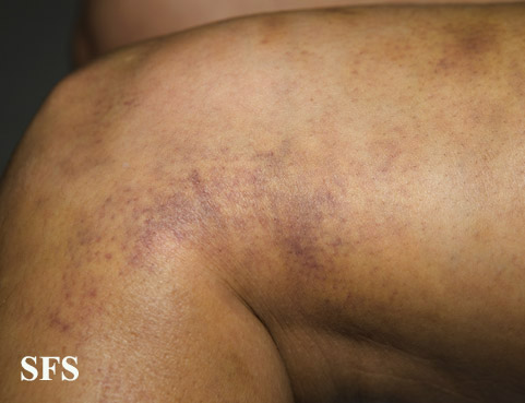 painful bruising syndrome(painful_bruising_syndrome7.jpg)